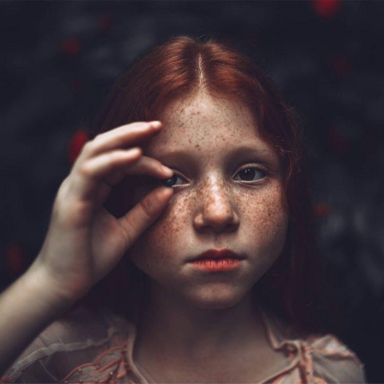 Detección temprana del cáncer de piel